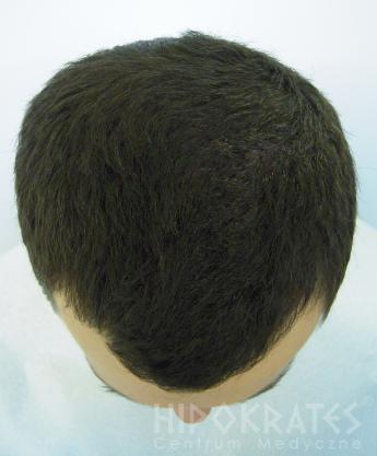 Alopecia po 21