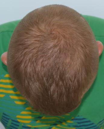 Alopecia po 23  b