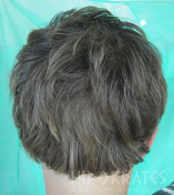 Alopecia po wo