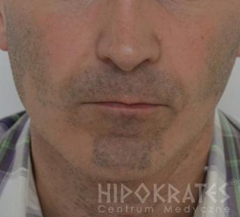 alopec2a przed