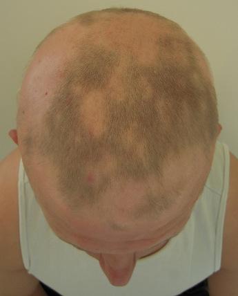 alopecia przed 23b