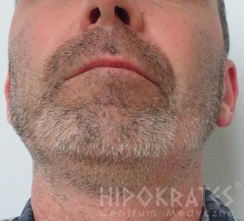 alopecia2a po
