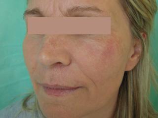 laserowe-leczenie-naczyniakow-8