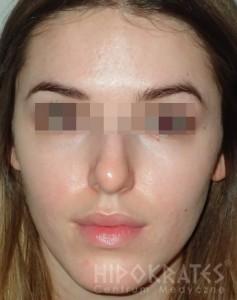 Efekt leczenia trądziku