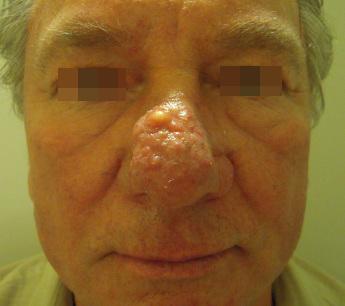 trądzikróżowaty&rhinophyma 1a przed