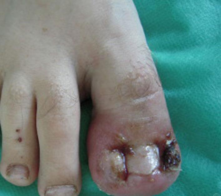 usuwanie-wrastających-paznokci