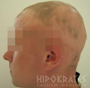 alopecia-przed-23a