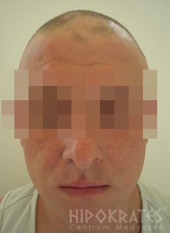 alopecia-przed23