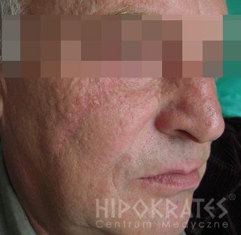 rhinophyma-1ab-po