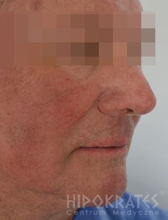 trądzik-różowatyrinophyma1bpo