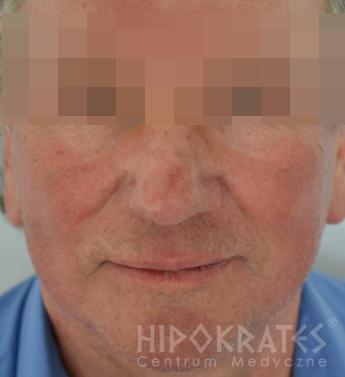 trądzikróżowatyrhinophyma-1a-po