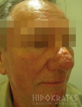trądzikróżowatyrinophyma-1c-przed.